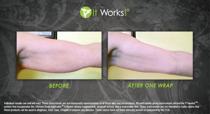 before-and-after-arm